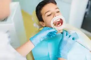 علاج تسوس الأسنان الأمامية عند الأطفال.