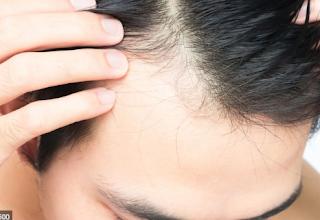 Sembuhkan Kebotakan Anda & Alopecia dengan Cara Alami (Herbal Cina)
