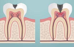 افضل دكتور علاج جذور اسنان في جدة
