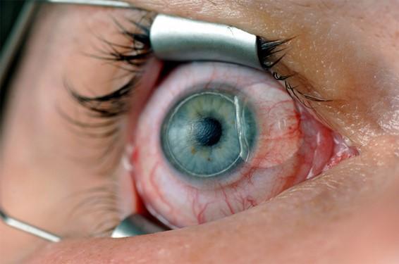علاج عيوب إنكسار العين