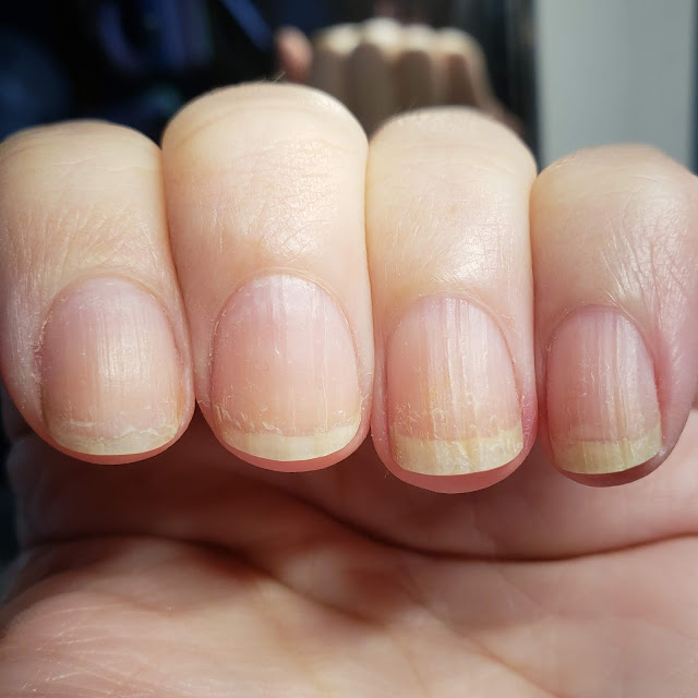 bare nails, short nails, dry nails, ridged nails