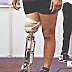 World Record Set in Modern Artificial Limbs (Legs)