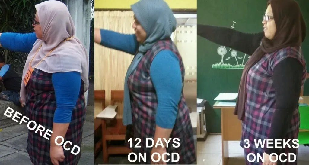 Tag: cara diet ocd 18 jam