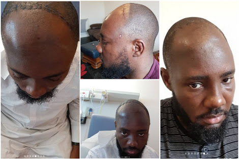 Lucky Nigerian Diagnosed With Brain Tumour, Left Paralyzed... Shares His Recovery Story