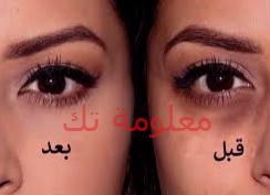 نصائح وعلاجات طبيعية للتخلص من الهالات السوداء تحت العين