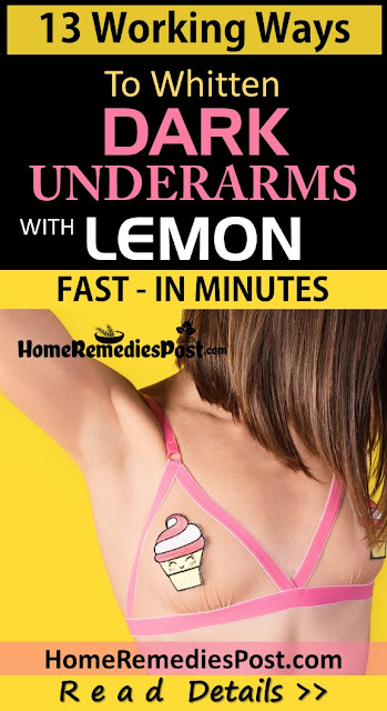 Lemon For Dark Underarms, How To Use Lemon For Dark Underarms, How To Get Rid Of Dark Underarms, Home Remedies For Dark Underarms, Dark Underarms Home Remedies, Lighten Dark Underarms Fast, Whiten Dark Underarms, Dark Underarms Treatment, Lighten Dark Underarms, How To Treat Dark Underarms, Dark Underarms Remedies, Remedies For Dark Underarms, Treatment For Dark Underarms, Best Dark Underarms Treatment, How To Get Rid Of Dark Underarms Fast,