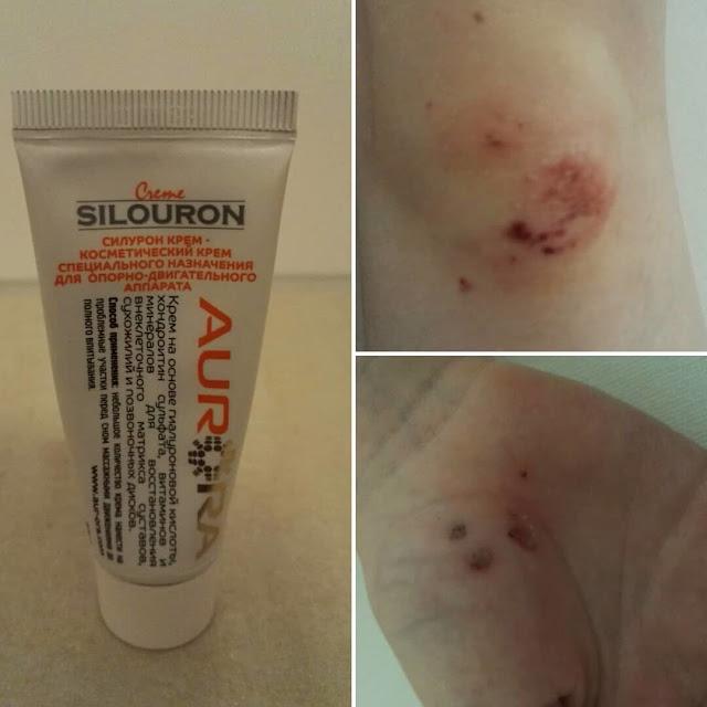 Рвано ушибленная рана и другие отзывы о Силурон креме от Аврора (Aurora)