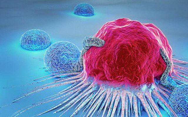 20 triệu chứng báo hiệu cơ thể có thể mang mầm bệnh ung thư, bạn cần biết