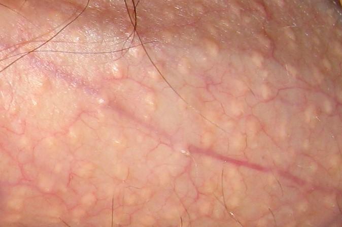 Herpes fila del borde del pene