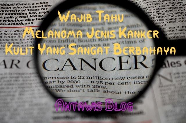 Namanya Melanoma Jenis Kanker Kulit Berbahaya Yang Wajib ...