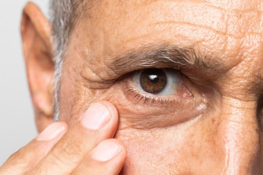 Glaucoma: Hospital Santa Luzia alerta sobre os cuidados necessários para prevenir a doença