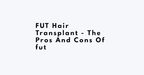 FUT Hair Transplant - The Pros And Cons Of Fut
