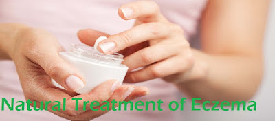 Natural Treatment of Eczema