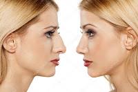 Come è possibile modificare la forma del proprio naso a casa