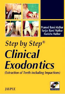 Step by Step Clinical Exodontics