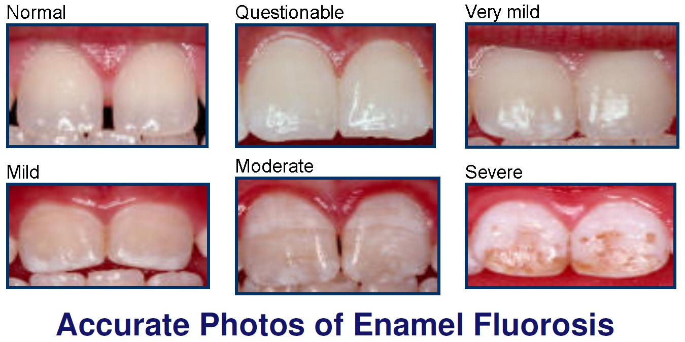 Molar Incisor Hypomineralization Dentistry And Medicine