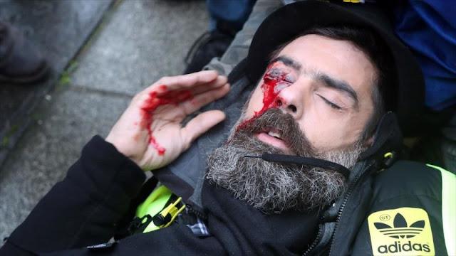 """Francia reprime violentamente protesta de """"chalecos amarillos"""""""