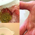 Watch Your Kidneys Stones Coming Out With This Amazing Home Remedy