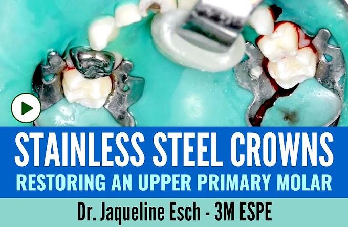 STAINLESS STEEL CROWNS: Restoring an upper primary molar - Dr. Jaqueline Esch - 3M ESPE