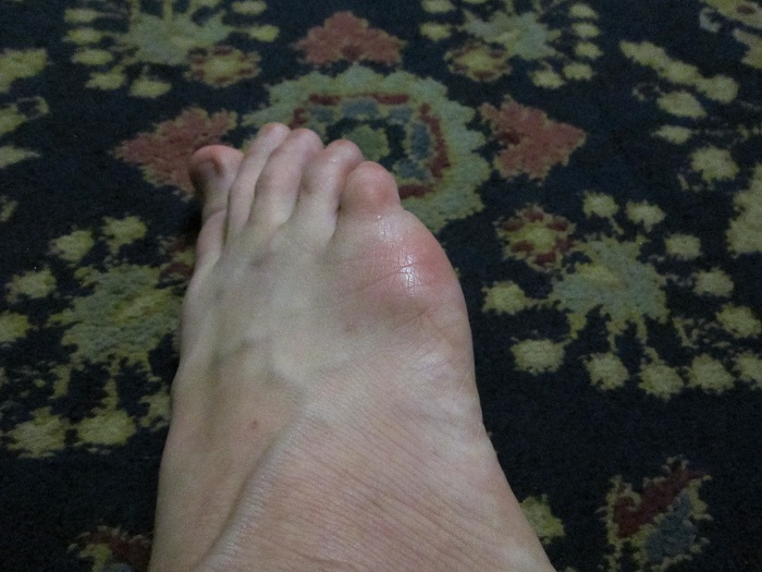foot, injury
