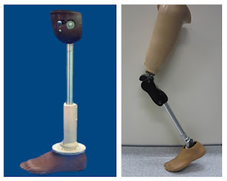 Prosthesis:Low cost artificial leg