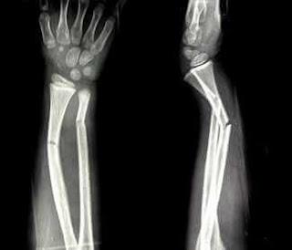 kol bilek kırık röntgen