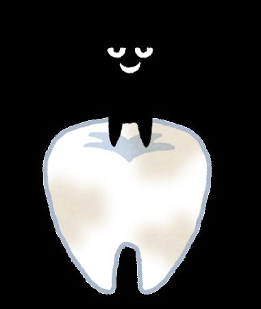 むし歯のイラスト
