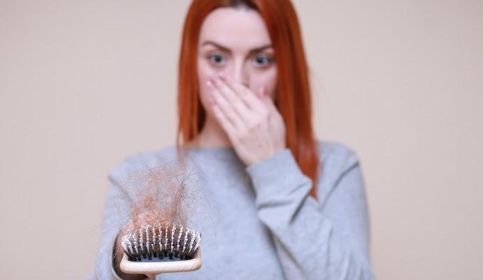 Hair Serum Aman dan Ampuh Atasi Rambut Rontok