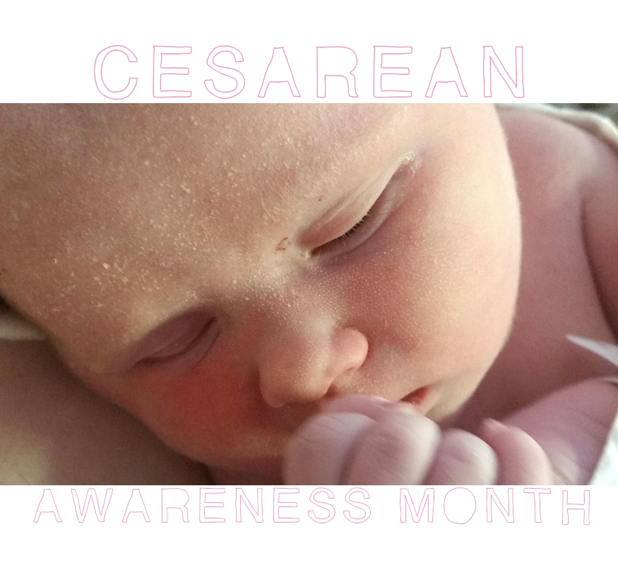 Cesarean awareness month, emergency cesarean