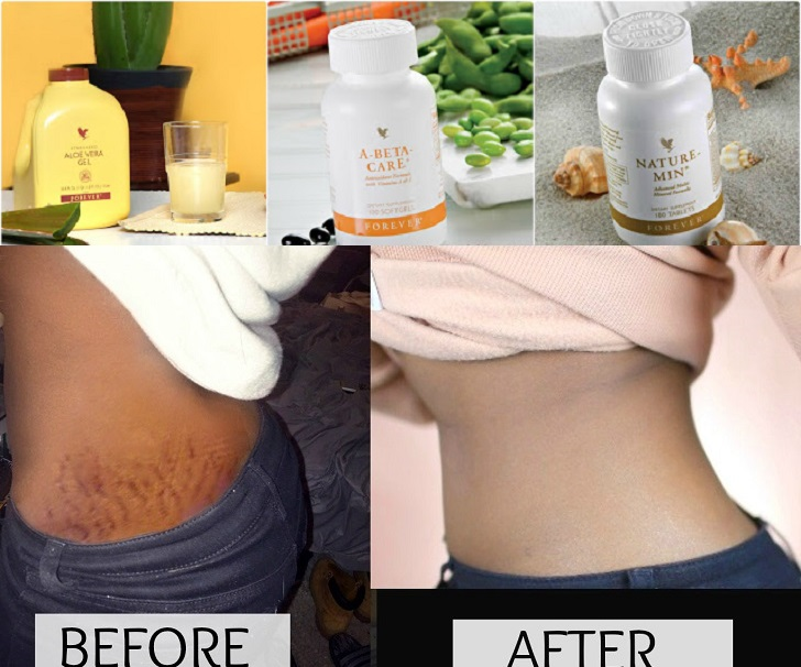 Forever Living Products for Stretch Marks and Scars