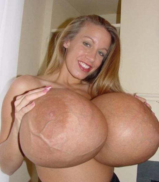 Photos biggest breast