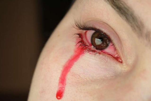 BLOOD-TEARS3