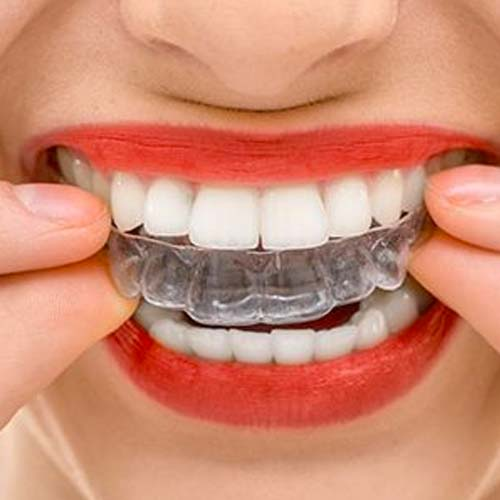 Est-ce que l'orthodontie invisible donne vraiment le résultat escompté ?
