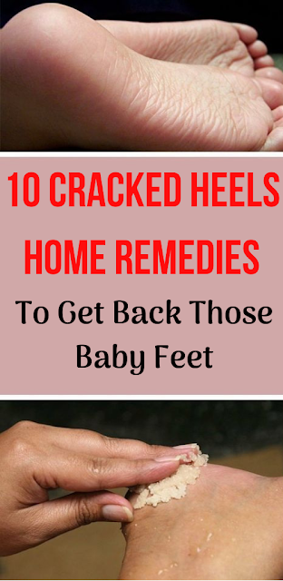 10 Cracked Heels Home Remedies to Get Back Those Baby Feet