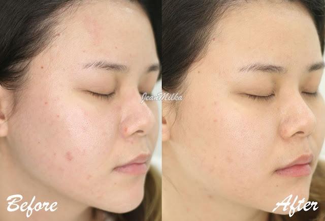 Foto Sebelum dan Setelah Perawatan Menghilangkan Bekas Jerawat di Erha Clinic