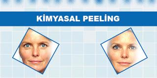 Kimyasal Peeling