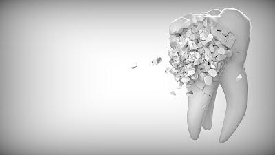 Cara Mengatasi Gigi Goyang dengan Bahan Alami