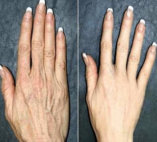 une crème rajeunissante pour les mains et le cou