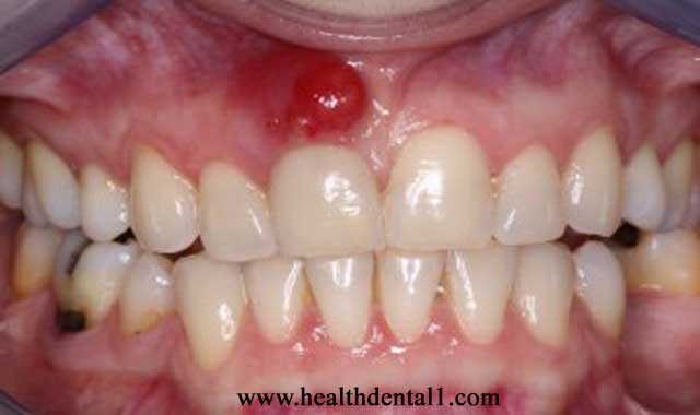 اسباب خراج الأسنان وعلاجه