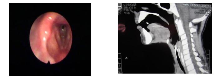 laryngeal-stenosis
