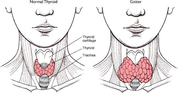 Obat Penyakit Tiroid