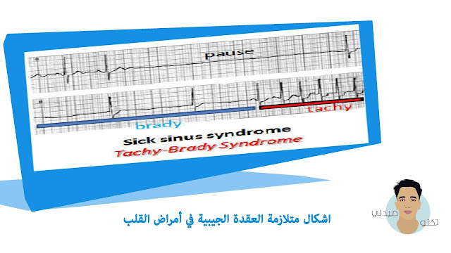 متلازمة العقدة الجيبية في أمراض القلب