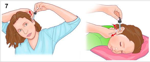 طريقة-استخدام-قطرات-الأذن-3