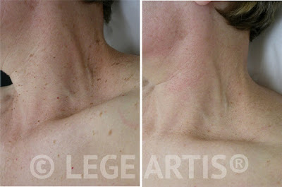 Success story: Skin Tag Removal