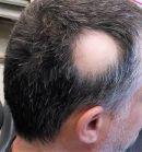 5 Alopecia Areata Natural Treatment Options That Work