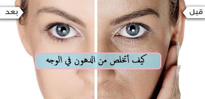 علاج الدهون في الوجه