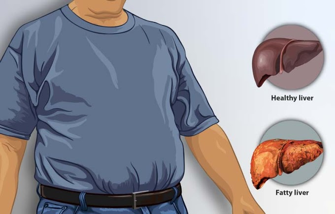 Fatty liver food to avoid and healthy food for Fatty liver