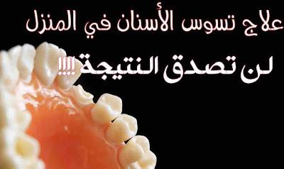 علاج تسوس الاسنان في المنزل - لن تصدق النتيجة!