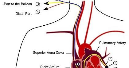 Swan-Ganz導管 Swan-Ganz catheter
