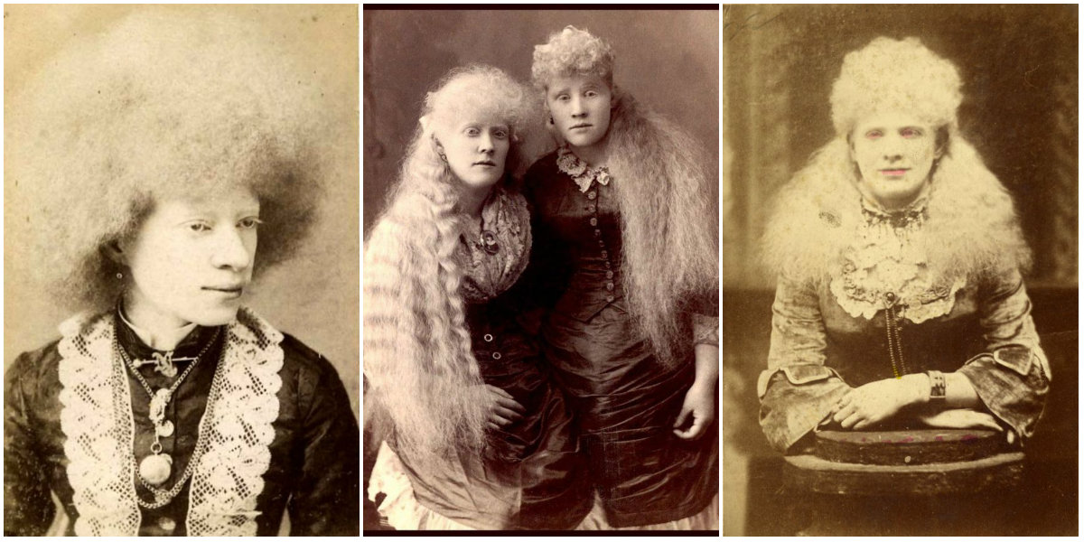 Amazing Vintage Portraits of Albino Circus Performers From the Victorian Era